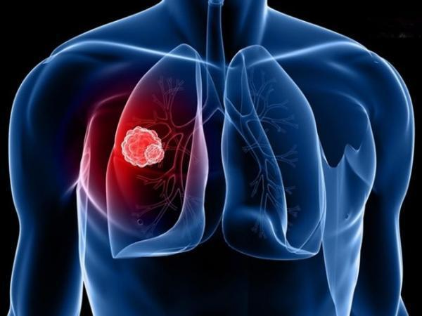 تنگی نفس یکی از مهمترین علائم آمبولی ریه