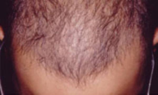 ریزش مو بعد ازکنکور!